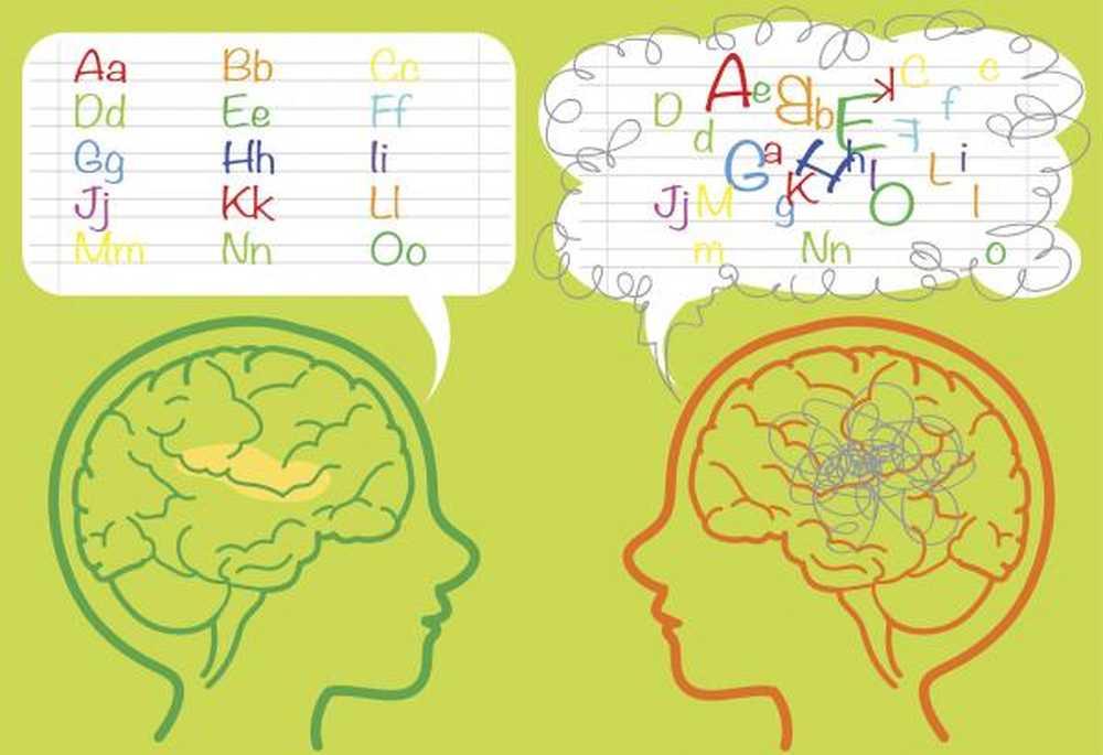 Výsledek obrázku pro dyslexie mozek
